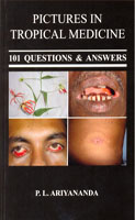 Pictures in Tropical Medicine : 101 Questions & Answers